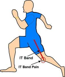 IT Band Pain