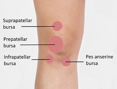 Knee Bursitis areas